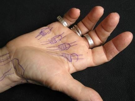Dedos en resorte | Dra. Mireia Esplugas