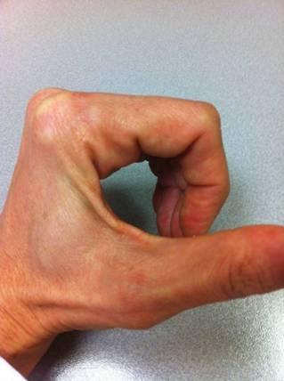 Cómo explorar el aparato extensor de los dedos? Porqué? (5/5)