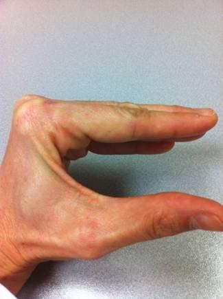 Cómo explorar el aparato extensor de los dedos? Porqué? (4/5)