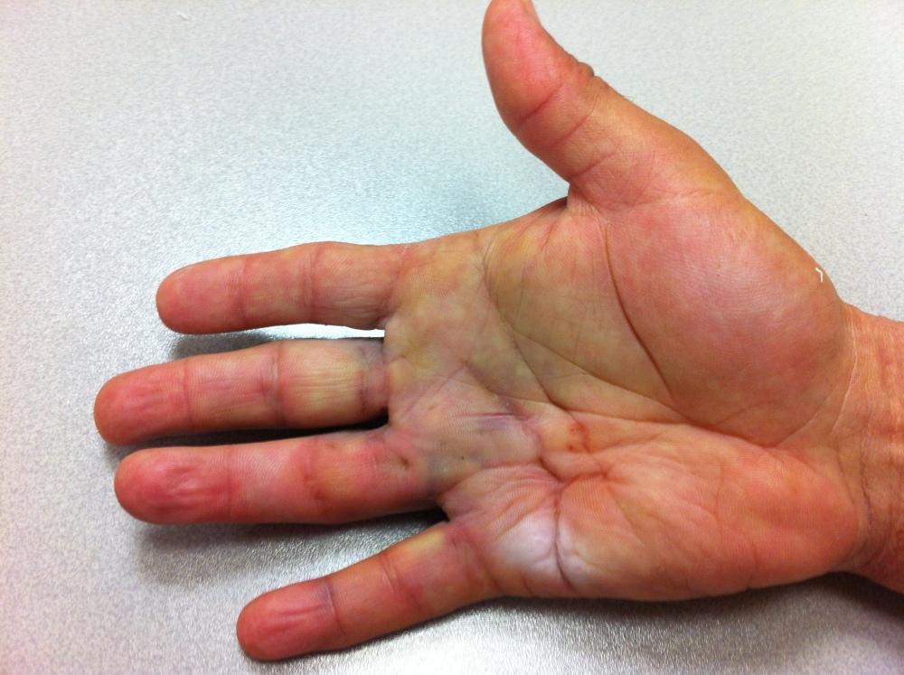 Tratamiento fisioterapéutico de la Enfermedad de Dupuytren tratada con Colagenasa. (1/2)