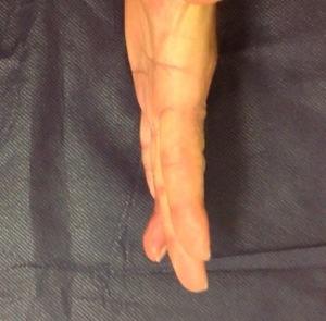 Nuestras amigas las férulas de extensión dinámica de las articulaciones IFP de los dedos trifalángicos (3/6)