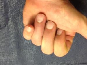 Nuestras amigas las férulas de extensión dinámica de las articulaciones IFP de los dedos trifalángicos (4/6)