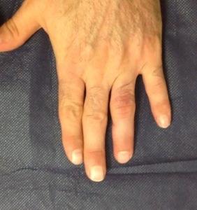 Nuestras amigas las férulas de extensión dinámica de las articulaciones IFP de los dedos trifalángicos (5/6)