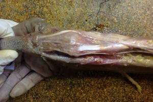 Enfermedad de De Quervain: anatomía de la primera corredera dorsal del carpo (2/2)