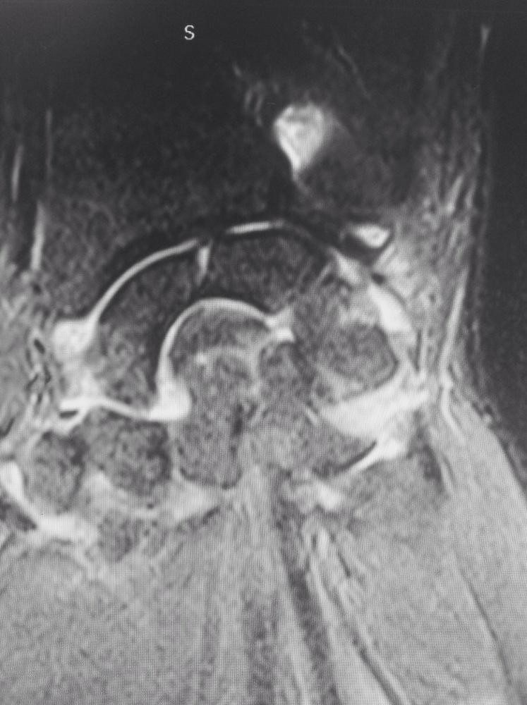 Porqué los pacientes afectos de una Artritis Reumatoide deben ser remitidos precozmente a un Cirujano de la Mano? (3/6)