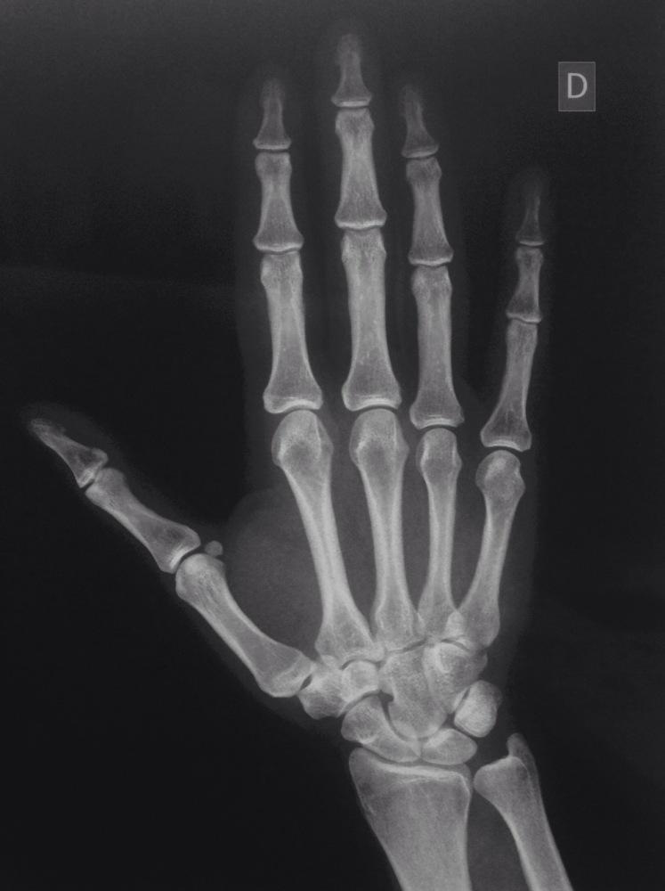 Porqué los pacientes afectos de una Artritis Reumatoide deben ser remitidos precozmente a un Cirujano de la Mano? (1/6)