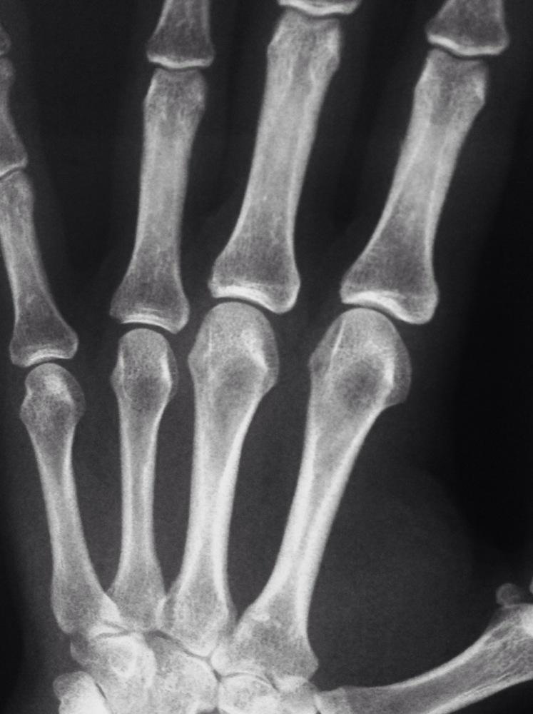 Porqué los pacientes afectos de una Artritis Reumatoide deben ser remitidos precozmente a un Cirujano de la Mano? (2/6)